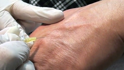 Carboxy Therapy
