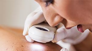 Prick-kontroll med dermaskopi av hela kroppen