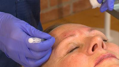 Botox/Vistabel behandling